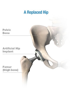 replaced hip