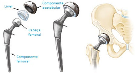 hip replacement aaos traduzido.jpg