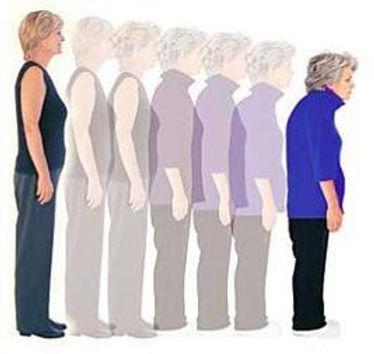 osteoporosis tempo.jpg