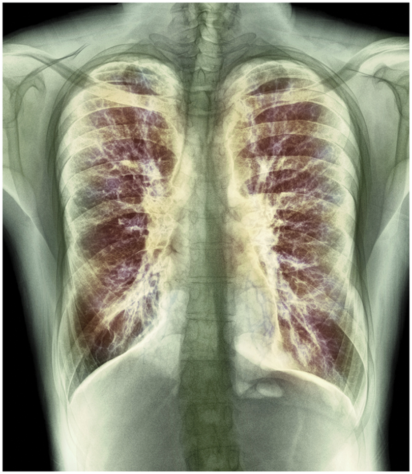 A new combination of CFTR modulators tested for treating cystic fibrosis.  PhotoStock-Israel/sciencesource.com