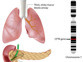 Galapagos Cystic Fibrosis Drug Enters Phase I, Triggering €8.5M Payout