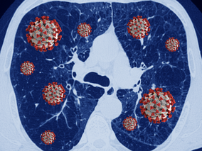 COVID-19 in Chronic Lung Disease: What You Need to Know