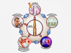 NIH study shows hyaluronan is effective in treating chronic lung disease