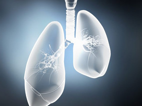 Nanoparticles Therapy May Be 'One-Size-Fits-All' Approach for CF, Study Suggests
