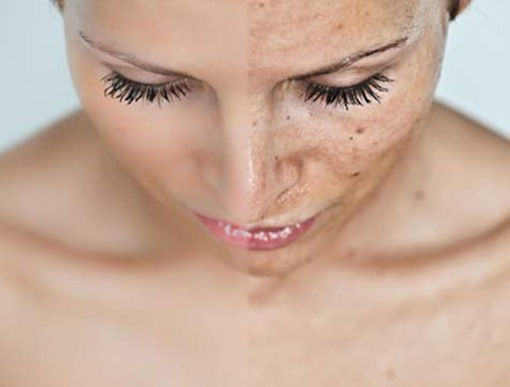 Hyper-Pigmentation or Age Spot Treatment