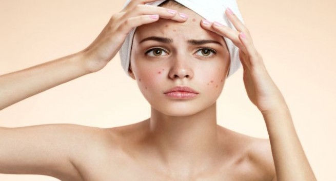 Acne or Blemish-Prone Skin Treatment