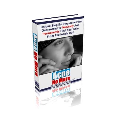 Acne no More holistic cure