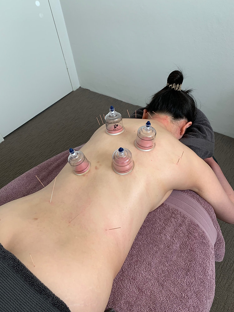 client needling and cupping.jpg