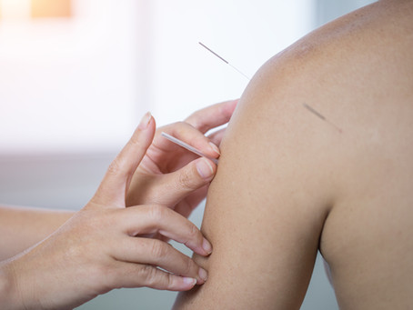 Science Says Acupuncture Works