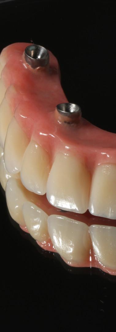 Protese Fixa sobre Implantes-Carga imediata-Medway Clinica