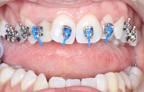 aparelho-autoligado-clinica-dentaria