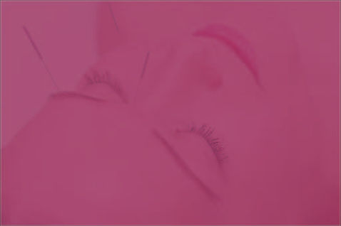 Acupunctura facial-01.jpg