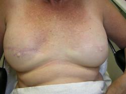 Before Breasthetics