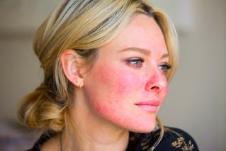 Defeating Facial Redness