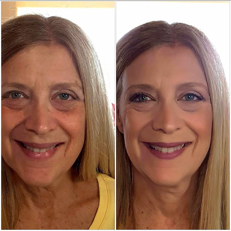 before and after on a  mature woman