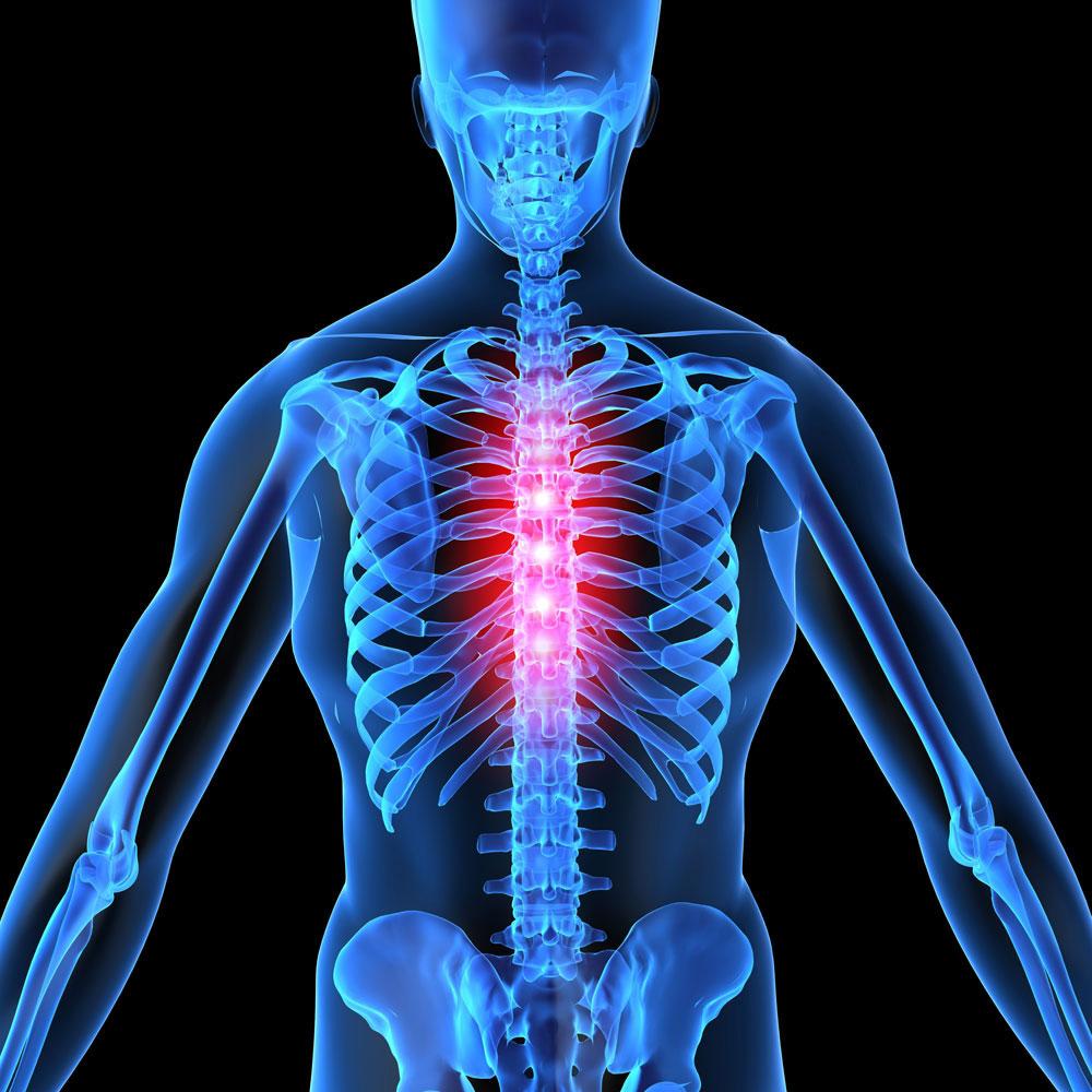 Мази для лечения поясничного остеохондроза