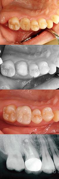歯牙移植 大臼歯