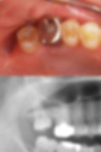 智歯の挺出