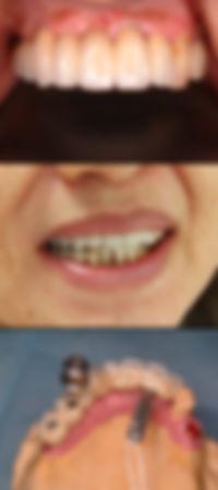インプラント 歯並び