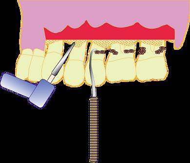 歯周外科治療イラスト