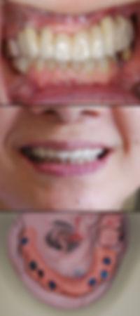 インプラント 口元 歯並び
