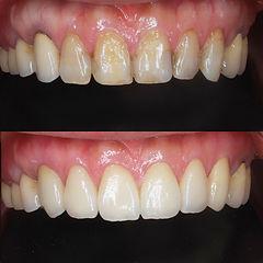 ジルコニア 6前歯 歯並び