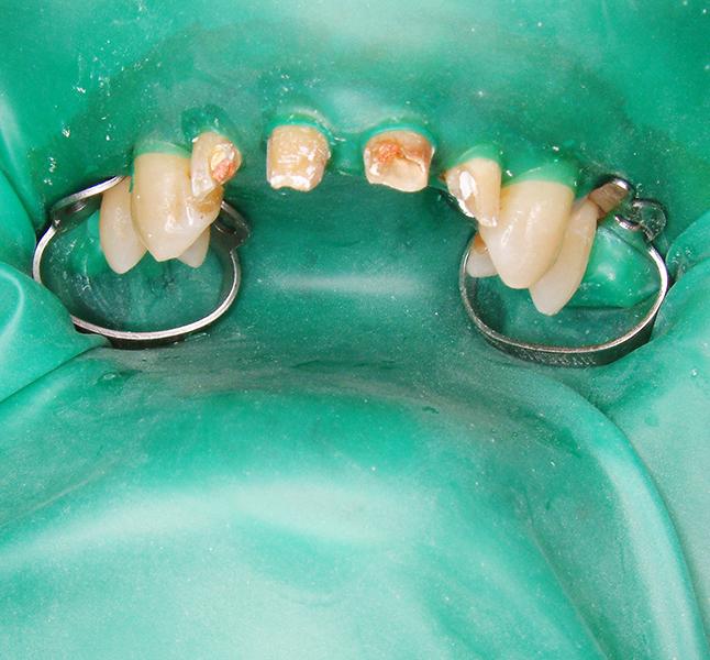 前歯のラバーダム