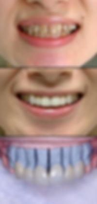 ラミネートベニア 前歯