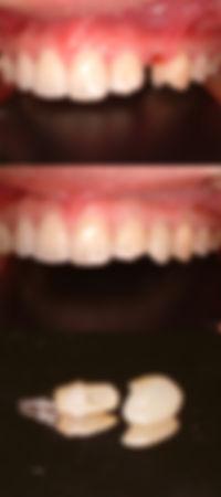 人工歯根 前歯