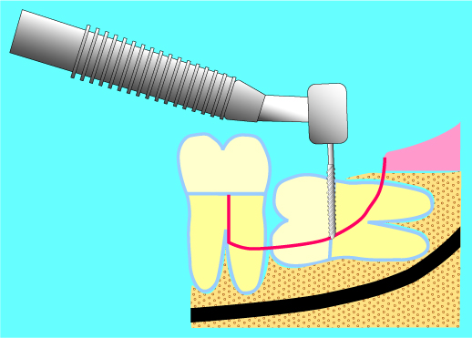 埋伏智歯の抜歯イラスト