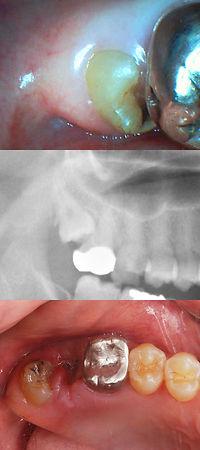 智歯自然挺出
