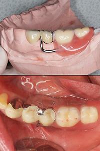 片側義歯 ジルコニア