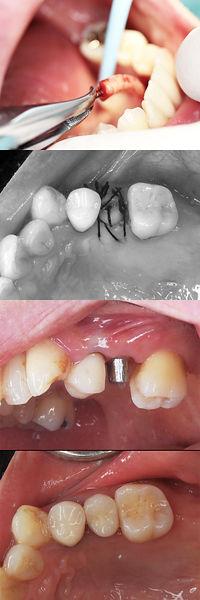 歯牙移植 小臼歯