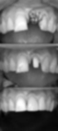 歯牙移植 中切歯