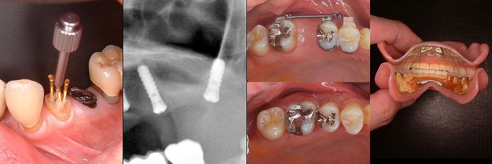 イーデント歯科室の治療症例