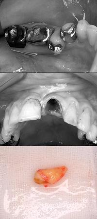 歯牙移植 前歯