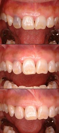 失活歯の変色 漂白