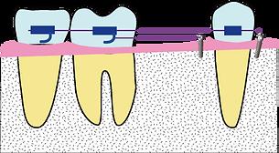後方臼歯を移動開始