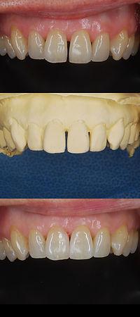離開前歯 歯の隙間 治療