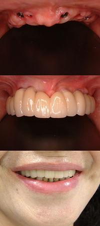 人工歯根 きれい 前歯