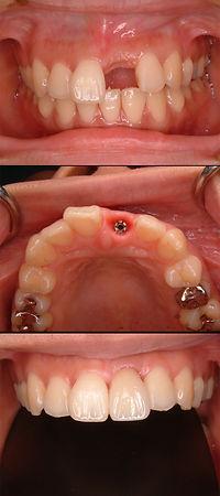 インプラント 中切歯