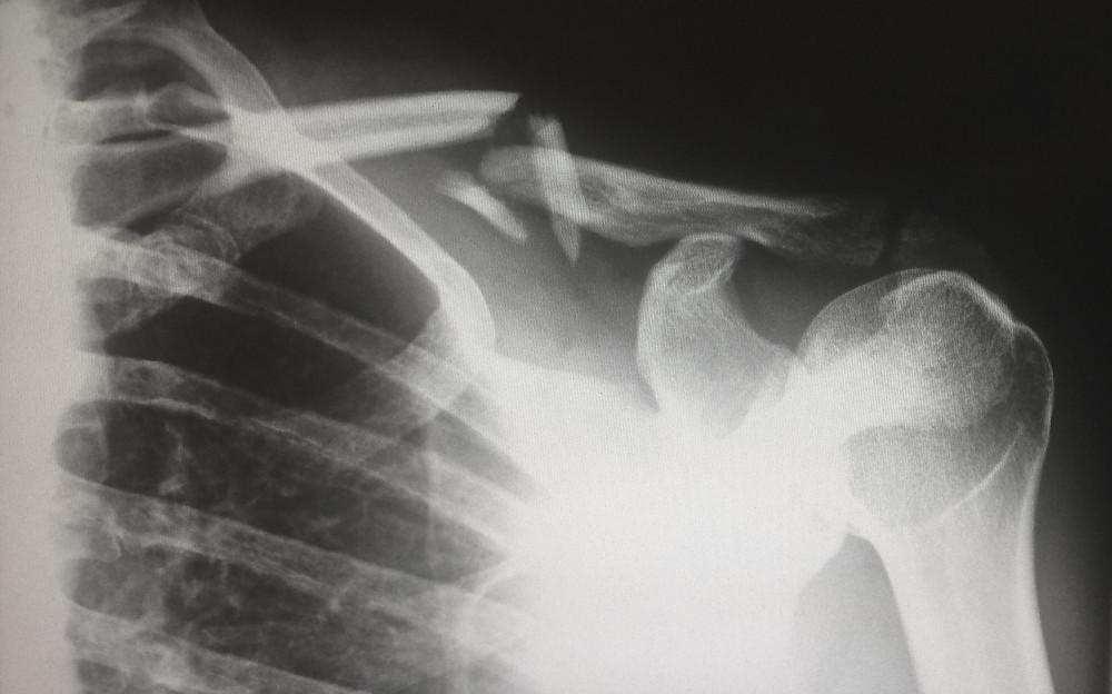 injury, massage, deep tissue massage, portland, motor vehicle accident