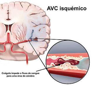AVC isquémico.jpg