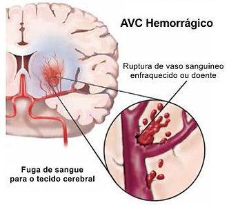 AVC_hemorrágico.jpg