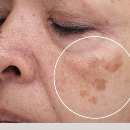 Pigment Correction Kit (Brown Spots/Melasma)