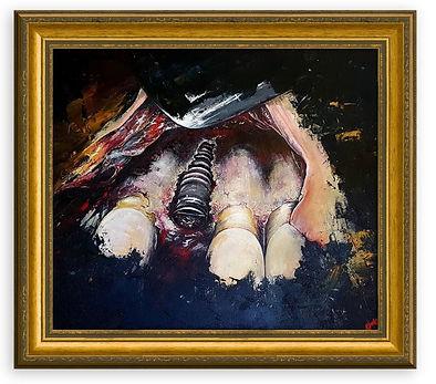 Caravaggio Implat series #1