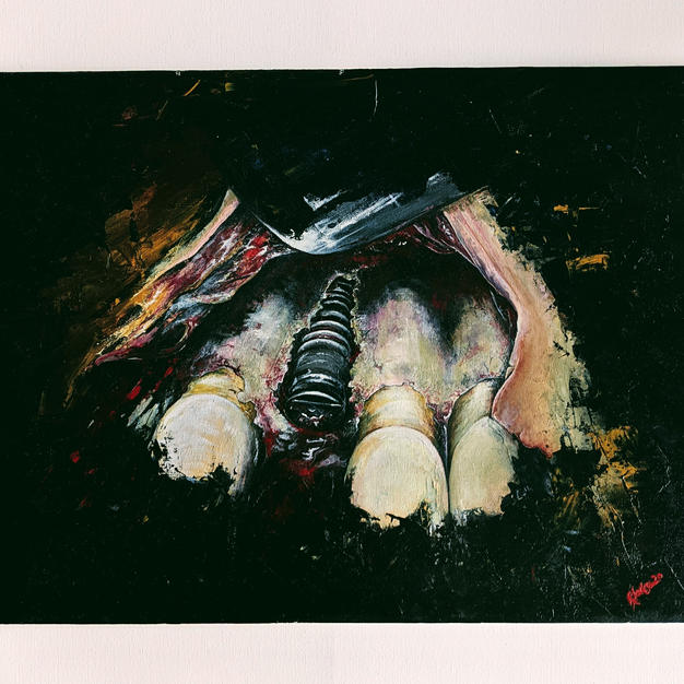 Implant - Caravaggio