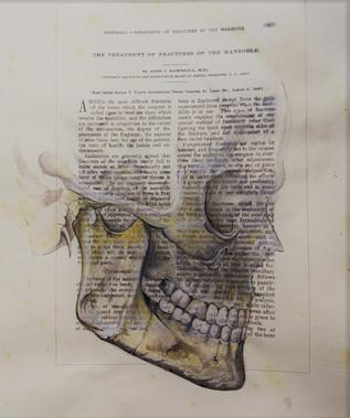 Fractured Mandible 1904