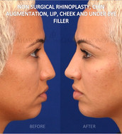 This patient had a lack of projection in her entire face. The face looked flat on lateral view. Filler was used to increase projection in her nose, cheeks, chin, and lips to create a less flat appearance to her face.