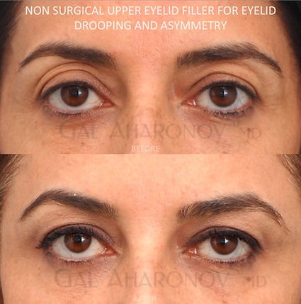 eyelid_filler_hollowness_around_eyes_fat